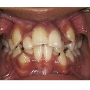 teeth with severe crowding that will be corrected with invisalign at tri city dental care